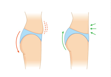 Reduce fat and cellulite at buttock and abdomen for beauty shape in side view. Illustration about body care.