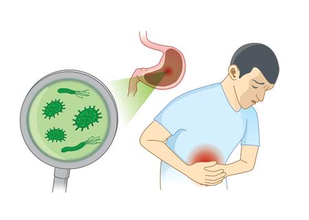Uomo che soffre di sintomi di mal di stomaco perché batterici. Illustrazione del concetto di igiene e salute.
