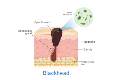 Bacteria in blackhead with human skin layer structure. Illustration about Acne from clogged in pore.  イラスト・ベクター素材