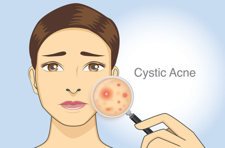 Woman holding magnifying glass for looking cystic acne on her facial. Illustration about skin problem concept.