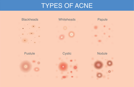 All Types of Acne appear on suface of the skin.  Illustration about skin care and problems.