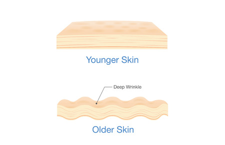 Difference of Human younger skin and older skin with wrinkle and elastin. Illustration about medical diagram and health care.