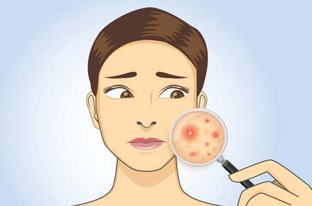 Woman holding magnifying glass for looking acne on her facial. Illustration about skin problem.