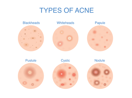 Types of Acne  icon for skin problems content. Illustration about dermatology diagram.  イラスト・ベクター素材