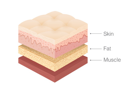 Anatomy of human Skin layer, fat and muscle layer in isometric style. Illustration about medical and health. 向量圖像