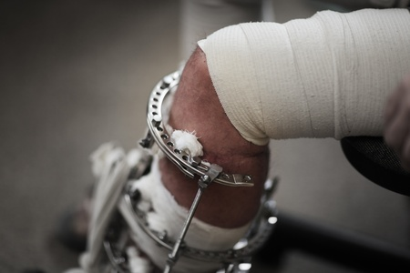 limb: Broken leg in metal support device. Closeup, shallow DOF. Stock Photo