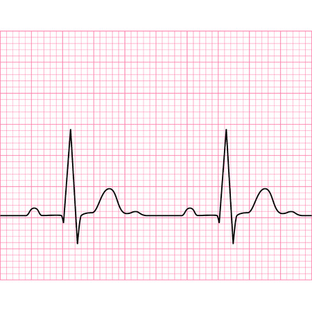 ecg monitoring: Illustration of medical electrocardiogram - ECG on chart paper, graph of heart rhythm, 2d illustration, vector, eps 8