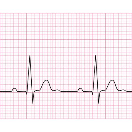 Ilustracja elektrokardiogram medycznych - EKG na papierze wykres, wykres rytmu serca, 2d ilustracji, wektor, eps 8
