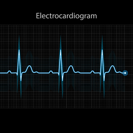 tachycardia: Electrocardiogram 2d illustration on black background
