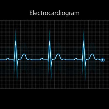 Elektrocardiogram 2d illustratie op zwarte achtergrond