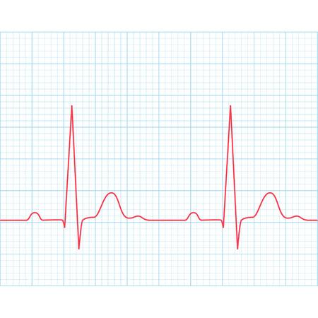 grid paper: Medical electrocardiogram - ECG on grid paper, graph of heart rhythm, 2d illustration, vector