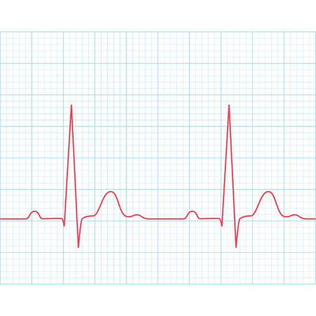 Medical electrocardiogram - ECG on grid paper, graph of heart rhythm, 2d illustration, vector
