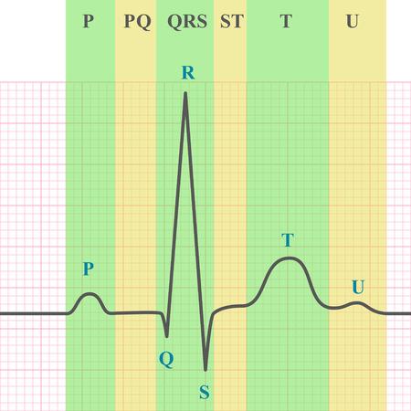 Bewertungsschema von EKG auf kariertem Papier, EKG Graph, 2d medizinische Vektor-Grafik, eps 10 Standard-Bild - 48545301