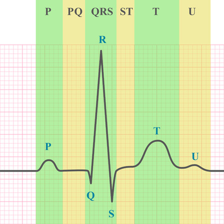 systole: Marking scheme of ECG on grid paper, ekg graph, 2d medical vector chart, eps 10