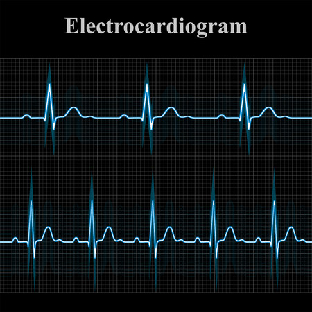 Normal and tachycardial ecg charts, 2d medical vector illustration on dark grid background