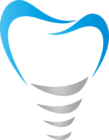 Tooth implant, tooth, dentist, implant