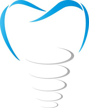歯のインプラント、歯科インプラント、歯科医 写真素材 - 70081949