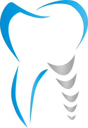 Tooth, dental implant, dentist vector illustration. Vettoriali