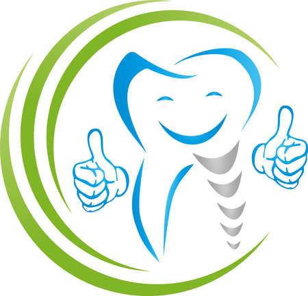 Dental implant, implant, dentist, tooth