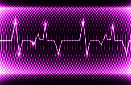 infarct: Colorful human heart normal sinus rhythm, electrocardiogram record. Bright and bold design.