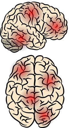emotional pain: Brain fever