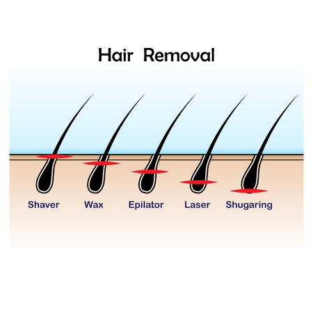 lenght: Hair removal variations with different hair lenght