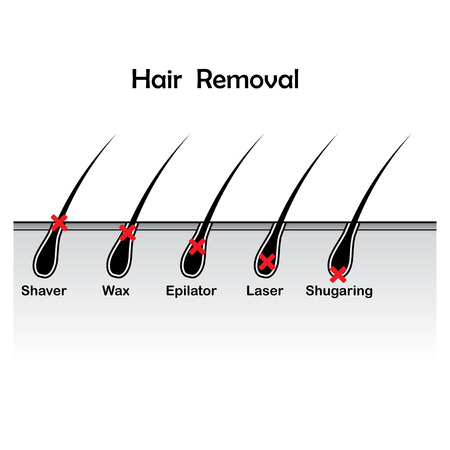 Hair removal variations with different hair lenght