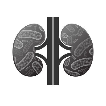 Black ill human kidneys silhouette with micro bacterium organisms Vectores