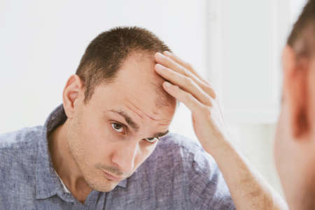 Male pattern hair loss problem concept. Young caucasian man looking at mirror worried about balding. Baldness, alopecia in males. Banque d'images
