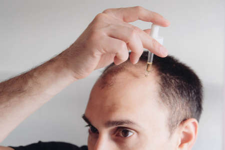 Hair loss treatment for men concept. Young caucasian man looking at mirror and applying anti-hair loss concentrate serum for regrow hair, close up. Baldness, alopecia in males.