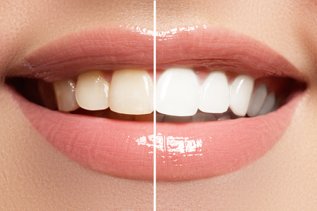 Macro happy womans smile with healthy white teeth, bright pink lips make-up