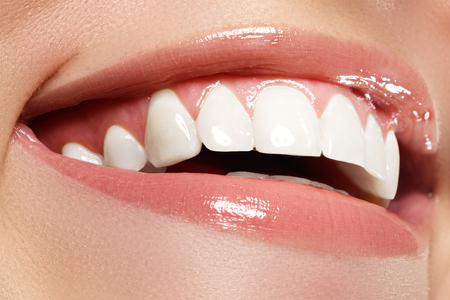 Perfect smile before and after bleaching. Dental care and whitening teeth Stok Fotoğraf