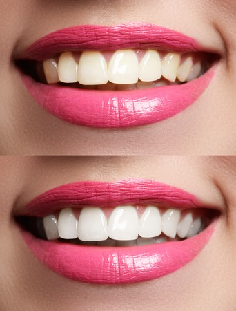 Macro happy womans smile with healthy white teeth, bright pink lips make-up. Stomatology and beauty care. Woman smiling with great teeth. Cheerful female smile with fresh clear skin