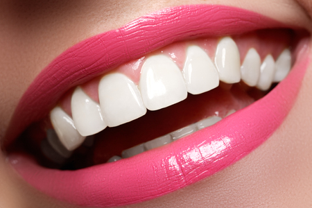 bleaching: Perfect smile before and after bleaching. Dental care and whitening teeth. Smile with white healthy teeth. Healthy woman teeth and smile and sexy full pink lips