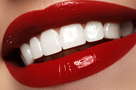 bleaching: Perfect smile after bleaching. Dental care and whitening teeth. Stomatology and beauty care. Woman smiling with great teeth. Cheerful female smile with fresh clear skin