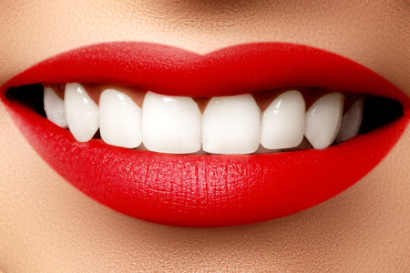 Perfect smile after bleaching. Dental care and whitening teeth. Stomatology and beauty care. Woman smiling with great teeth. Cheerful female smile with fresh clear skin