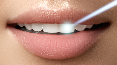 Perfect smile after bleaching. Dental care and whitening teeth. Laser teeth whitening