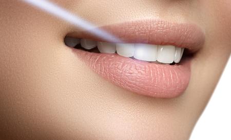 Sonrisa perfecta después de blanquear. Cuidado dental y blanqueamiento dental. Blanqueamiento dental con láser