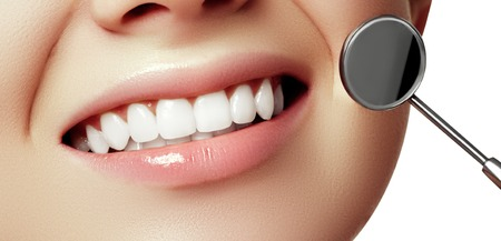Womans smile. Healthy white womans teeth and a dentist mouth mirror close-up. Dental hygiene, oral care concept. Examination at dentistry with dental tools. Teeth whitening. Stomatology concept Zdjęcie Seryjne