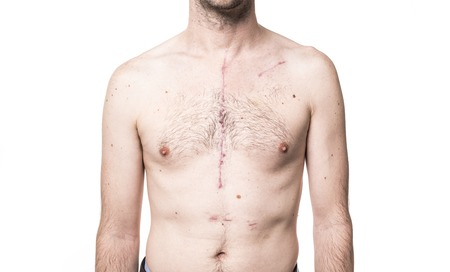 スタジオでのオープン心臓手術からいくつかの傷跡