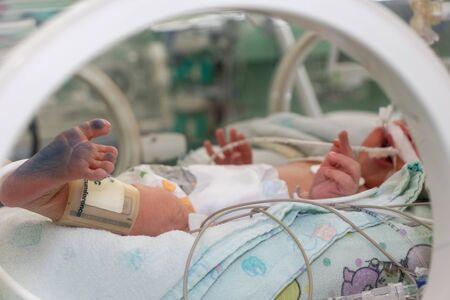 Incubadora con un recién nacido enfermo en la unidad de cuidados intensivos neonatales. pies con tinta de huella Foto de archivo