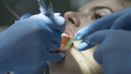 odontolith: Medical dentist procedure of teeth polishing with cleaning from dental deposit and odontolith Stock Photo