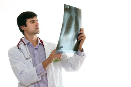 ribcage: Doctor evaluating a patients chest x-ray.