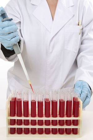 pathologist: Scientist or other laboratory worker using a 90�L fixed volume pipette to extract samples from test tubes.