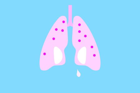 Lungs with white stains symbolizing eyes with a tear and virus flat design illustration