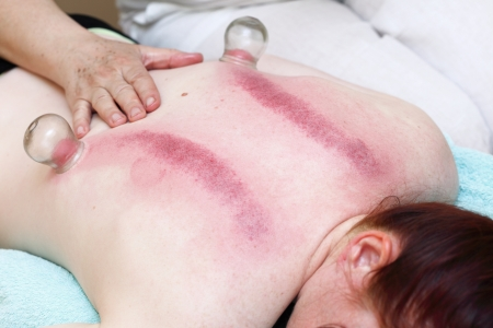 to cup sb, therapist removing a fire cupping glass from the back of a young woman fire cupping treatment photo