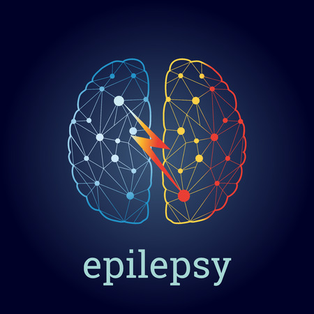 brain illustration with strong epileptic activity