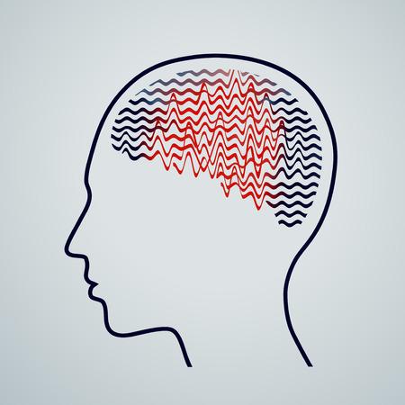 El cerebro humano con la actividad de la epilepsia, conciencia de la epilepsia, ilustración vectorial