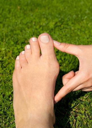Hallux 외반, bunion 잔디 배경에 여자 발에