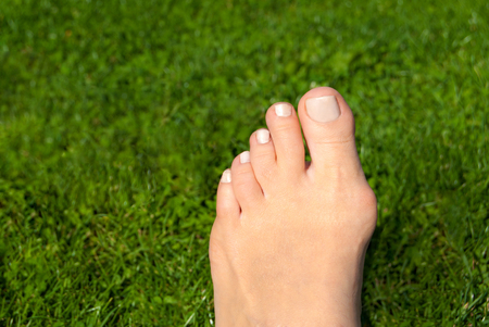 Hallux valgus, bunion in woman foot on grass background Banco de Imagens